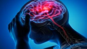 السكتة الدماغية تقتل مليوني خلية عصبية كل دقيقة.. ما أعراضها؟