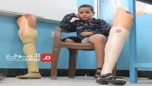 طفولة مهدورة في مأرب.. قصة طفل نازح فقد قدمه بقصف حوثي (تقرير)