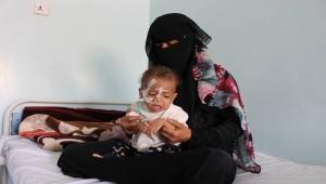 سوء التغذية.. خطر يهدد حياة الأطفال في تعز (تقرير)