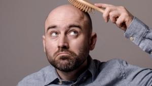 هذه أحدث صيحة لعلاج تساقط الشعر