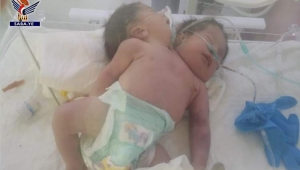 ولادة توأم سيامي ملتصق في الصدر والبطن بصنعاء
