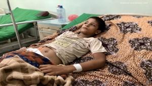 أطباء بلا حدود: عالجنا 241 شخصا أصيبوا بلدغات الأفاعي في اليمن
