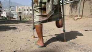 تورط ثلاثة مستشفيات بتعز.. كيف عانى جرحى الحرب في اليمن من عمليات بتر غير ضرورية (ترجمة خاصة)