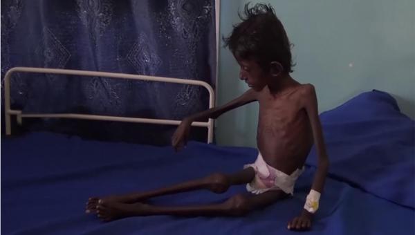برنامج أممي: حياة الملايين في اليمن تزداد صعوبة كل يوم
