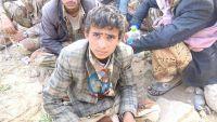 شاهد صورا لاطفال اسرى من الحوثيين في الجوف