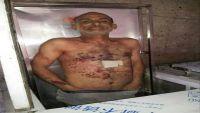 مقتل مشرف الحوثيين بمديرية السبرة في إب بعد إعتدائه على منزل شقيقه (صورة )