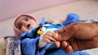 مستشفى حكومي في أبين يطلق نداء استغاثة عقب وصول عدد كبير من المصابين بالكوليرا