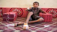 تقرير حقوقي: 98 حالة تضرر بشرية ومادية لألغام المليشيا خلال 28 شهرا بالضالع