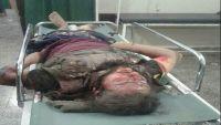 اغتيال مواطن وإصابة اثنين آخرين برصاص مسلحين مجهولين بالضالع