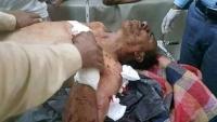 مقتل طفل وإصابة والده بانفجار قنبلة أطلقها مسلحو أبو العباس في تعز