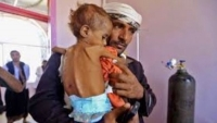 الصليب الأحمر: 3.2 ملايين طفل وامرأة في اليمن يعانون من سوء التغذية الحاد