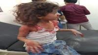 يمنيون: مجازر الحوثيين في تعز ستبقى شاهدة على قذارة المحايدين