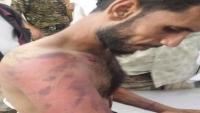 الكشف عن سجون سرية وتعذيب واختطافات ترتكبها السعودية بالمهرة
