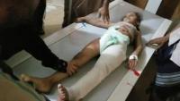 تعز.. مقتل طفلين في قصف حوثي وتسجيل إصابات جديدة بالكوليرا
