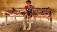 الضربات الجوية تشوه أطفال اليمن وتترك ندوبا في أجسادهم