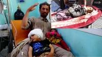 مقتل إثنين وإصابة أربعة أخرين في قصف للتحالف على صعدة