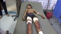 مقتل طفل وإصابة أخرين في انفجار لغم حوثي جنوبي الحديدة