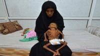 جماعة الحوثي: وفاة 100 ألف طفل يمني سنويا بسبب الحرب والحصار