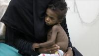 """للمرة الأولى باليمن.. ظهور فيروس """"غرب النيل"""" في تعز"""