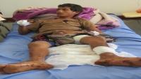 إصابة طفلين بانفجار لغم زرعه الحوثيون بمنطقة مجزر بمأرب