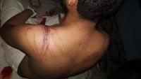 """مسؤول حكومي يطالب بالتحقيق مع قوات مدعومة إماراتيا """"عذبت"""" صحفيا"""