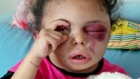"""بينهم قائد التحالف.. محكمة حوثية تصدر حكما بالإعدام تعزيرا بحق متهمين في قضية الطفلة """"بثينة"""""""
